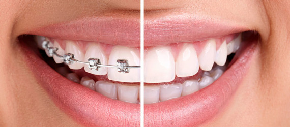 braces-before-after-DENTCARE-JBR