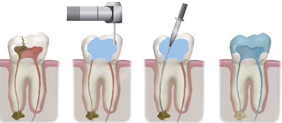 root-canal-treatment-DENTCARE-JBR