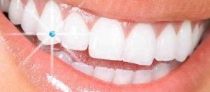 Whitening-and-Dental-Jewellery-dentcare