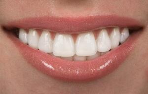 Teeth-dentcare