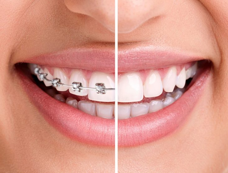 invisalign-braces-teenedit-dentcare