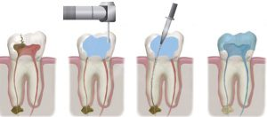 root-canal-treatment-dentcare